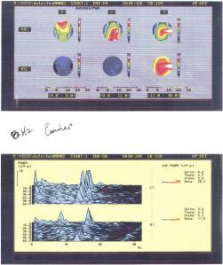 EEG-18-12HzRamp